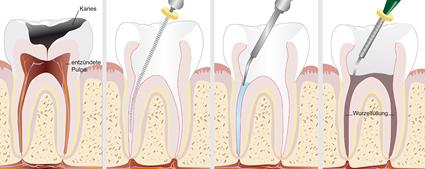 Zahnarztpraxis Dr. Daniela Felsmann in Lübben, Endodontie