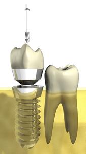Zahnarztpraxis Dr. Daniela Felsmann in Lübben, Implantologie