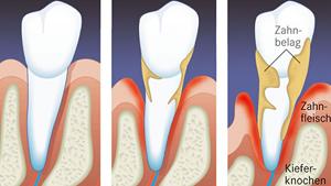 Zahnarztpraxis Dr. Daniela Felsmann, Parodontitis